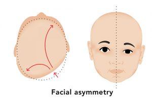 facial asimetri